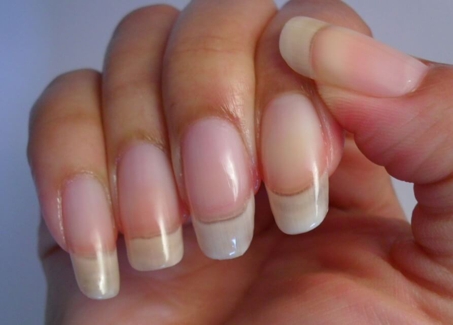 Do Nails Grow Faster In Summer?