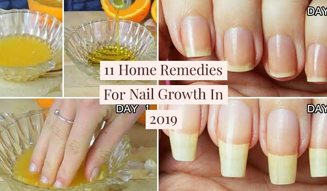 12 Best Home Remedies For Nail Growth And Hardening In 2020