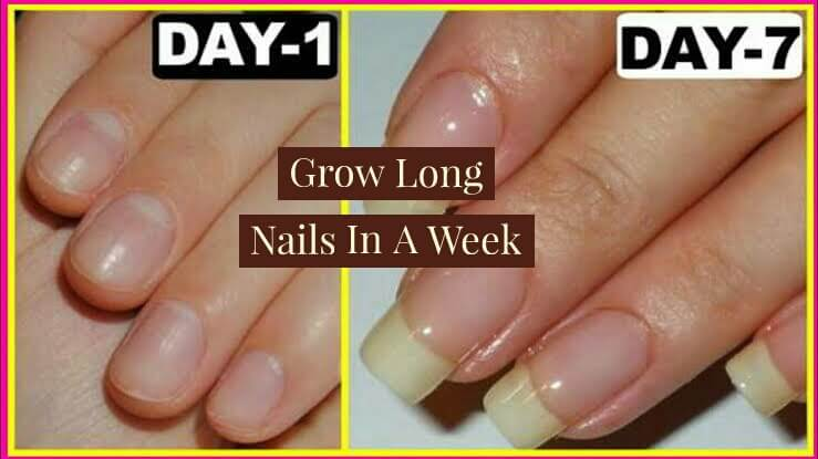 How To Grow Nails Faster In A Week, Get Long Nails In One Week, Grow Natural Nails In 5 Days