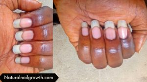 How To Grow Nails Faster In A Week