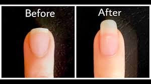 grow nails fast in 1 hour