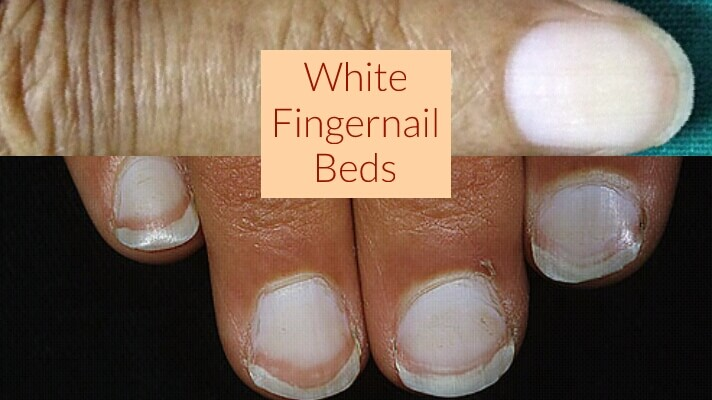 White Fingernail Beds – What It Means