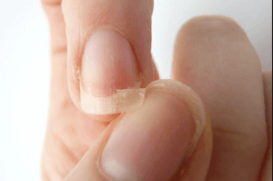 How To Fix A Broken Natural Nail