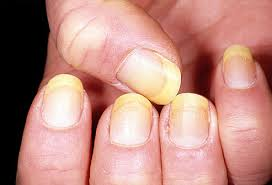 White fingernail beds