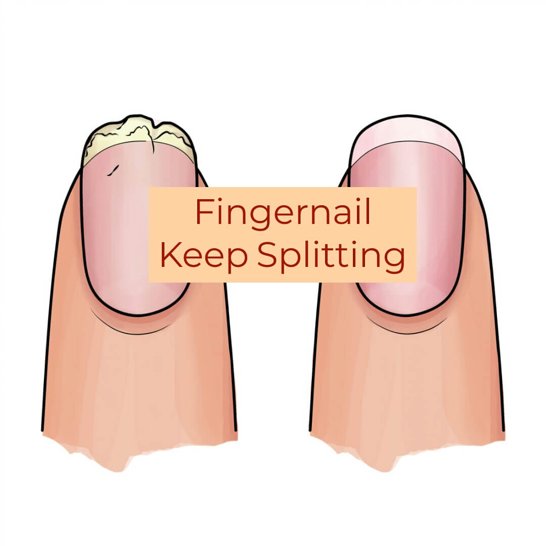 My Fingernails Keep Splitting? Here's What To Do