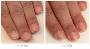 is cuticle oil good for nails