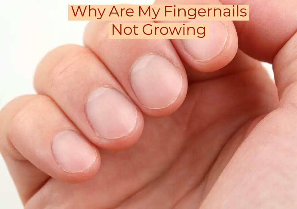 Why Are My Fingernails Not Growing? ( 9 Reasons & Solution)