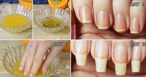 How To Grow Your Nails In One Day