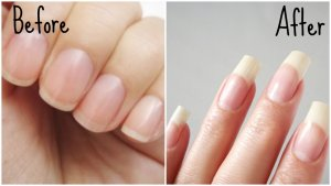 Is Castor Oil Good For Nails